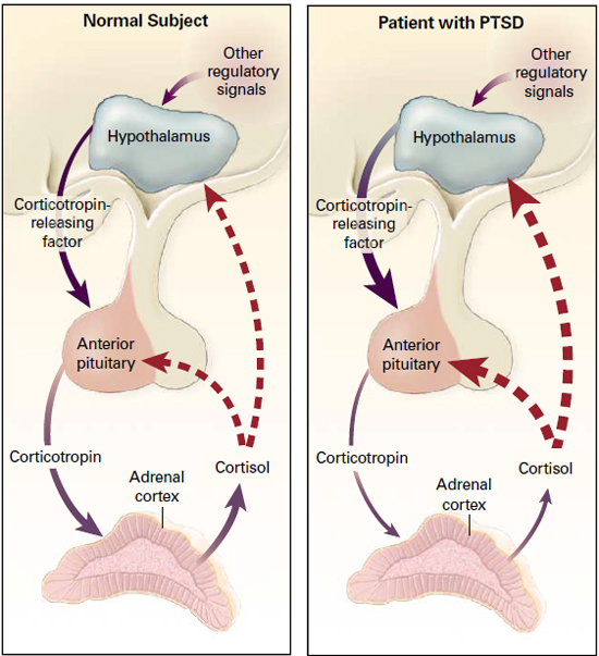 hpa axis suppression topical corticosteroids